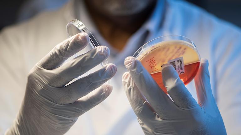 Två händer i vita labbhandskar öppnar en petriskål.