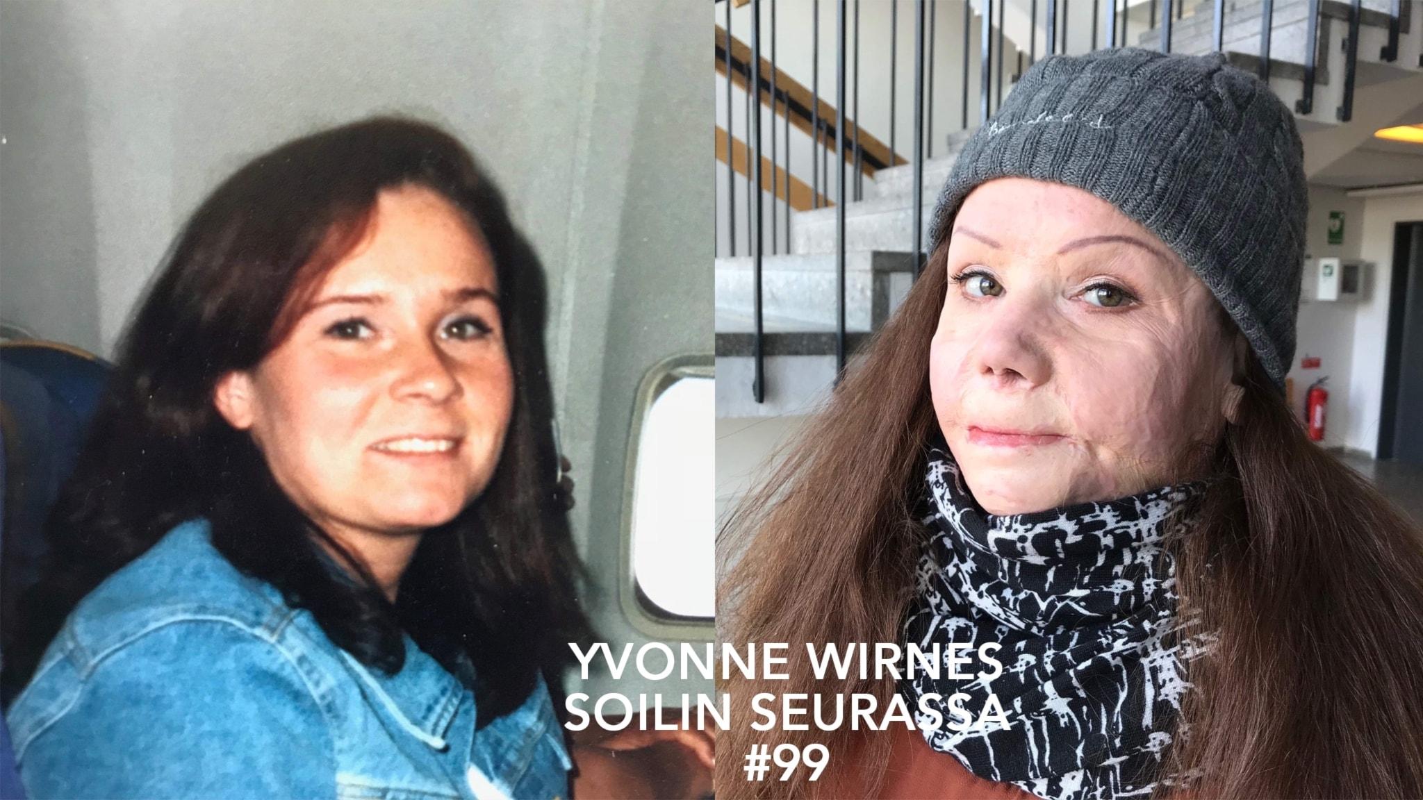 Pahasti palanut Yvonne Wirnes 13 vuotta tuhopolton jälkeen: lähdin heti sairaalasta päästyäni ihmisten ilmoille, en jäänyt kotiin piiloon.