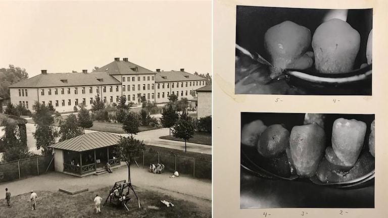 Gammal bild från anstalten Vipeholm i Lund, och en gammal bild av trasiga tänder.
