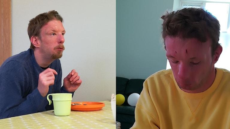Dick Nord har sår och bulor i ansiktet.