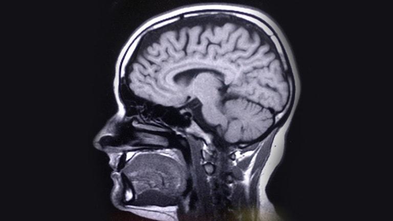 Röntgenbild på hjärna