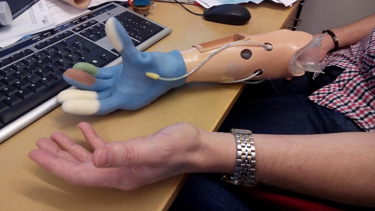 Bild på en så kallad känselprotes, med luftbubblor i fingertopparna.