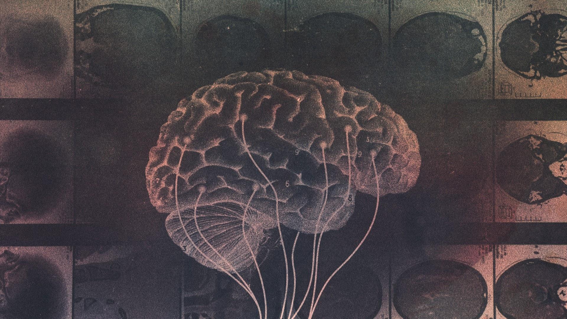 Hjärnkontroll