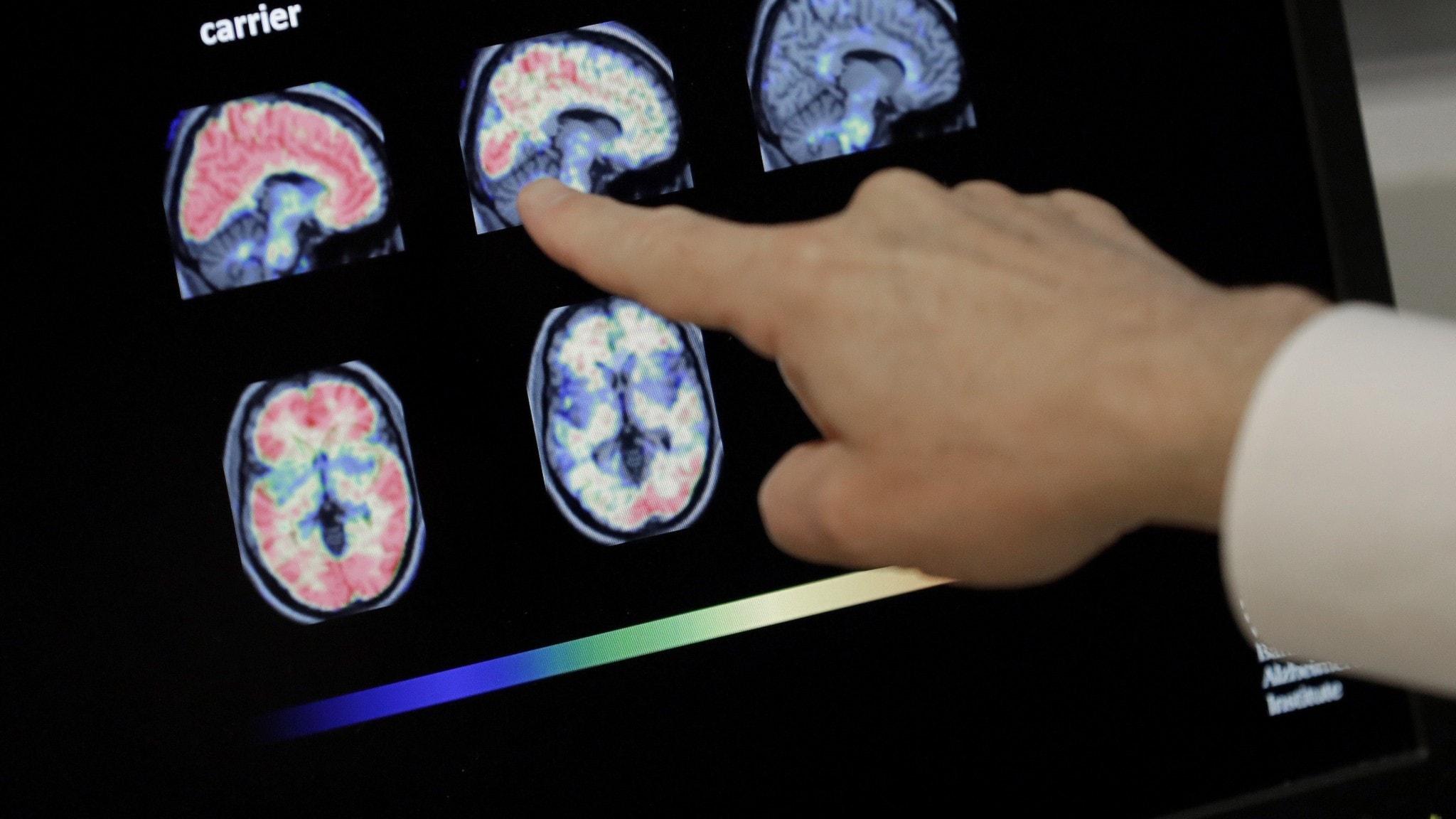 Bilder av hjärnan vid Alzheimers sjukdom