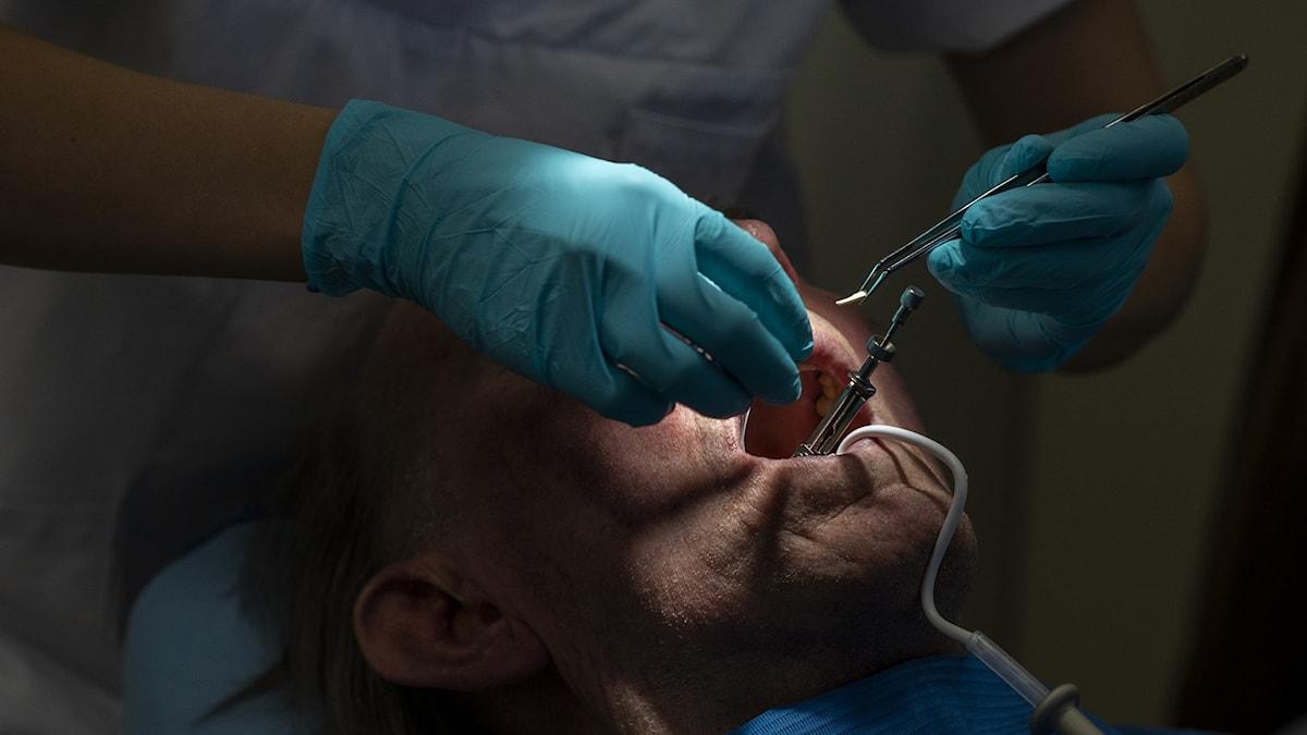 Närbild på en tandläkare som undersöker tänder i en öppen mun.
