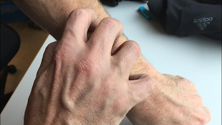 En hand kliar på en arm