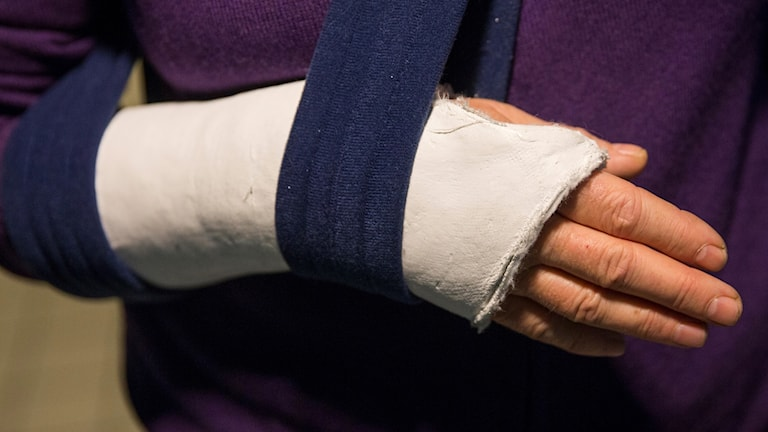 Person med bruten arm.