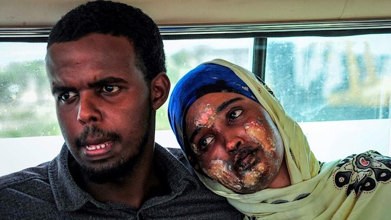 En kvinna, en av hundratals skadade efter dådet, väntar med sin man på transport till specialistvård för sina brännskador.
