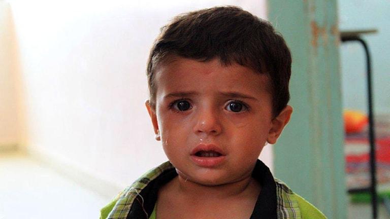 En hungrig flyktingpojke från Aleppo.