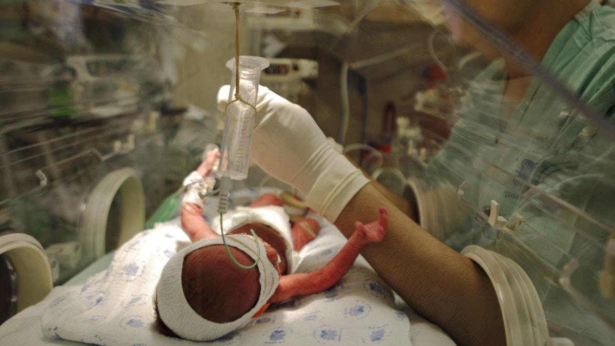 En för tidigt född bebis i Israel. Foto: TT