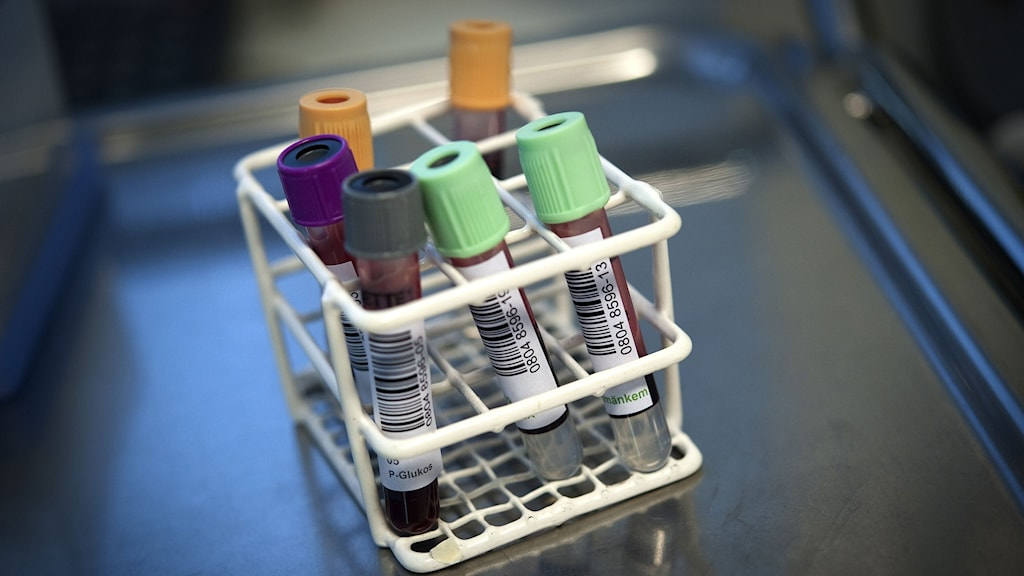 Provrör med blod i för att göra PSA-test.