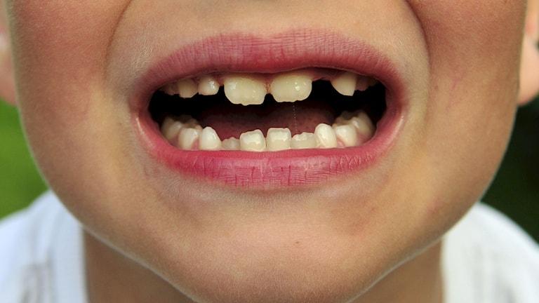 Tänder, tandläkare, barn