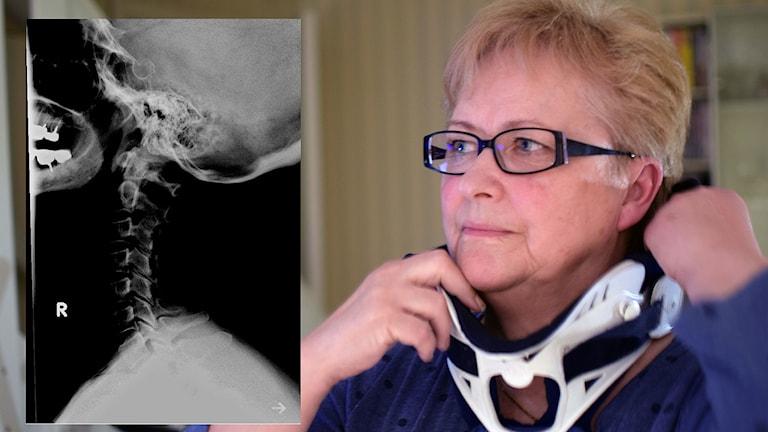 Margareta Forsberg med nackstöd intill en röntgenbild av hennes nacke. Foto: Kaliber.