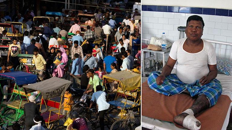 Lepra indien Foto: Manish Swarup/AP. Foto: Johan Bergendorff