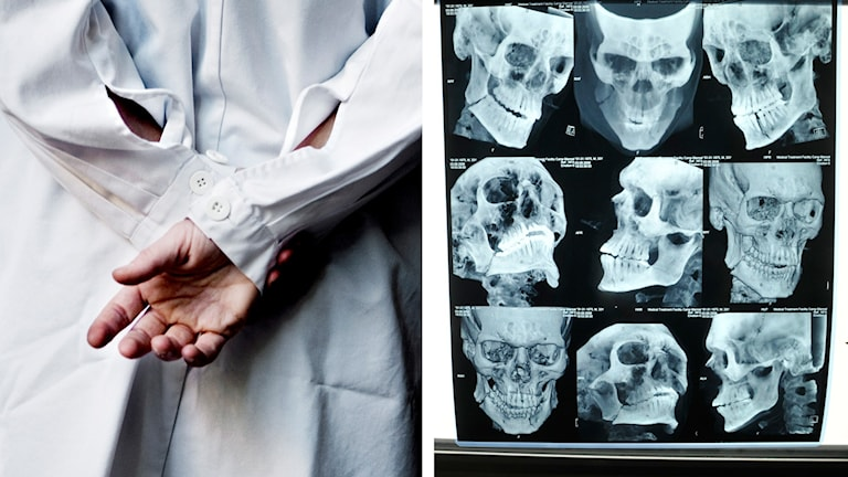 Många är kritiska till röntgenundersökningar på distans som permanent lösning på läkarbristen. Foto: Cleis Nordfjell/Staffan Löwstedt/TT.