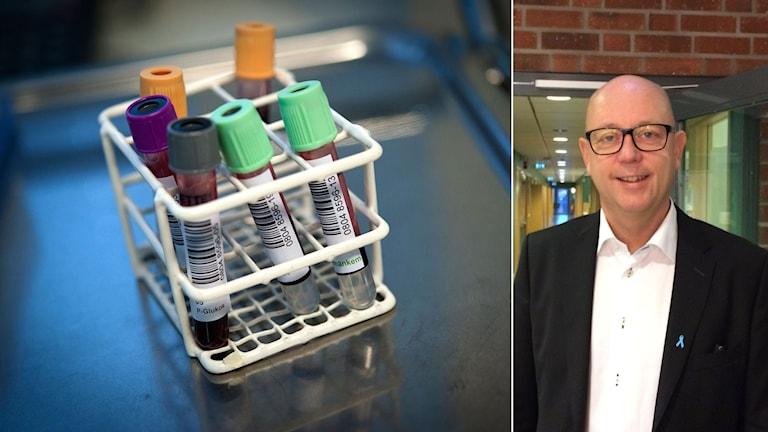 Med hjälp av ett nytt test utifrån ett vanligt blodprov hoppas forskarna öka träffsäkerheten när det gäller att hitta prostatacancer. Henrik Grönberg, Karolinska Institutet. Foto: TT/Sveriges Radio. Montage: Sveriges Radio.