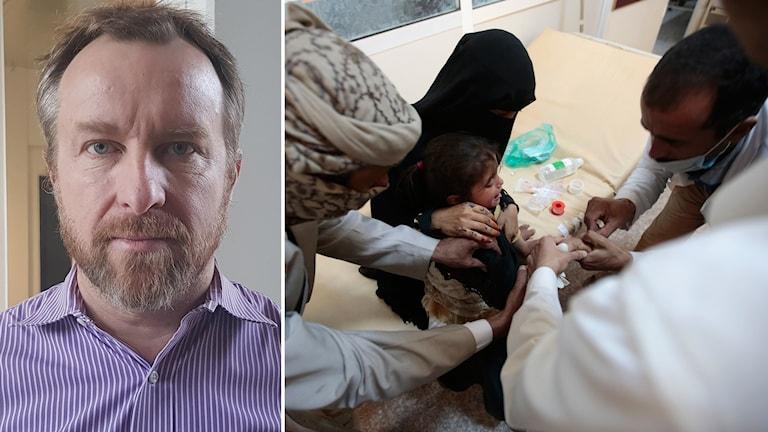 En miljon kan vara kolerasmittade i Jemen.