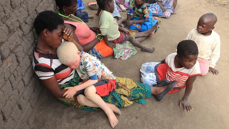 En mamma håller sitt barn som är albiner.