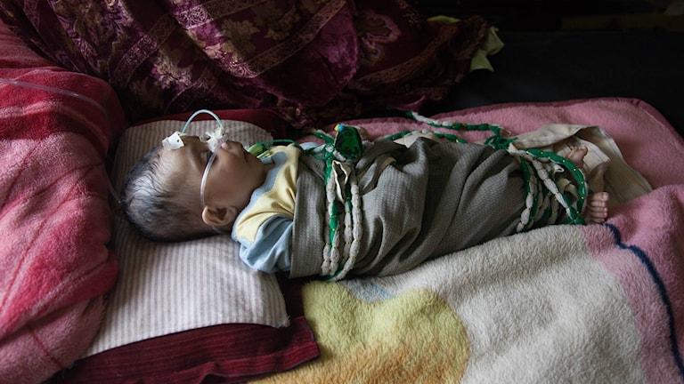 Barn med svår lunginflammation i Pakistan.