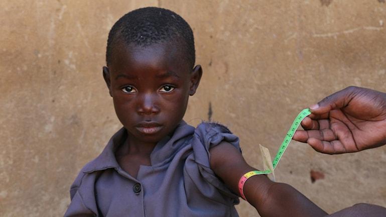 I Zambia är 45 procent av barnen tillväxthämmade av undernäring.