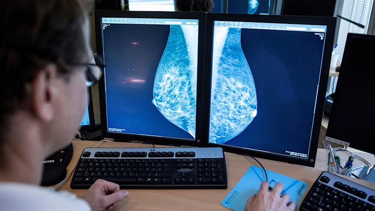 En läkare tittar på bröströntgenbilder, mammografibilder.