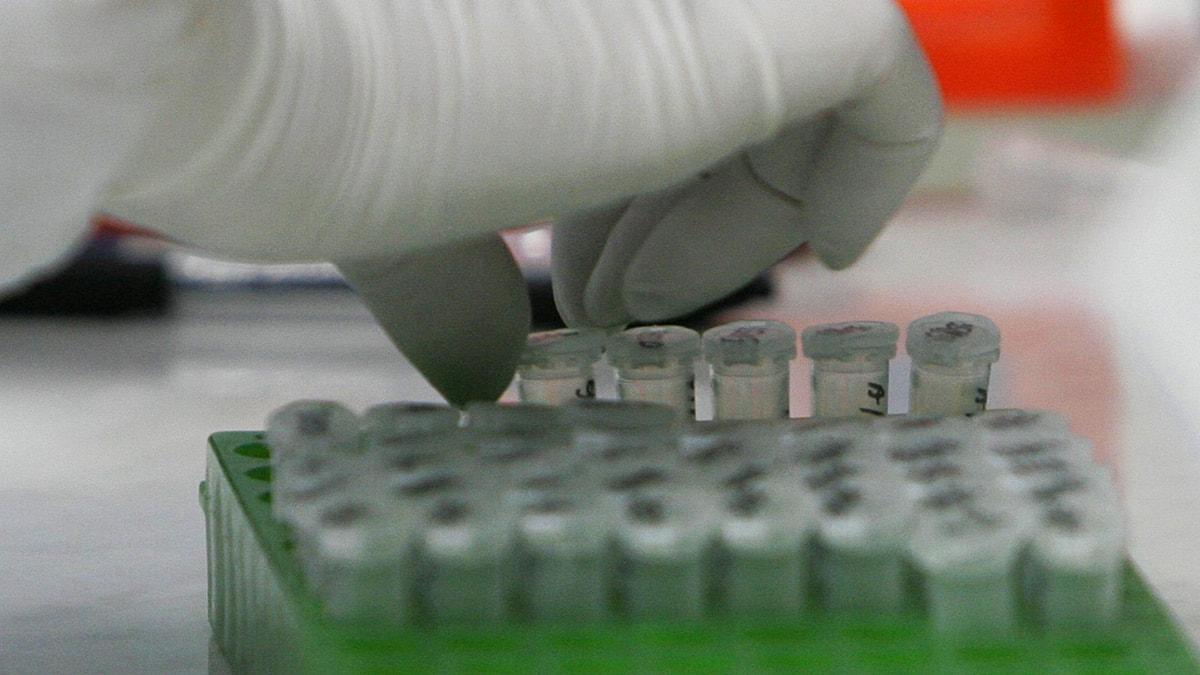 DNA-test i ett laboratorium. Foto: Amel Emric/Scanpix.