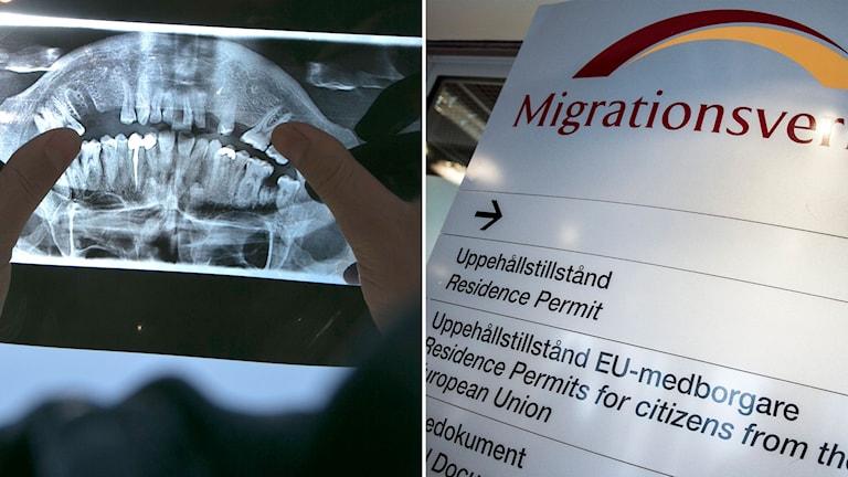 Delad bild: Tandröntgen och en skylt med Migrationsverkets logotyp.