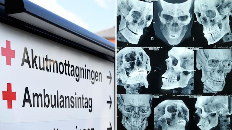 Akutmottagning och röntgenplåtar på skallar