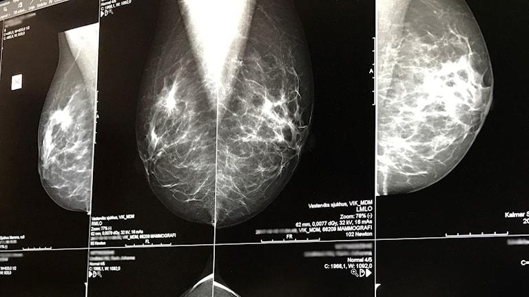 Röntgen av bröst gjorda på mammografi.