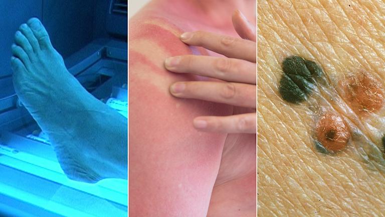 Tredelad bild: Person i solarium, person med solbränd hud, närbild på ett malingt melanom, alltså hudcancer.