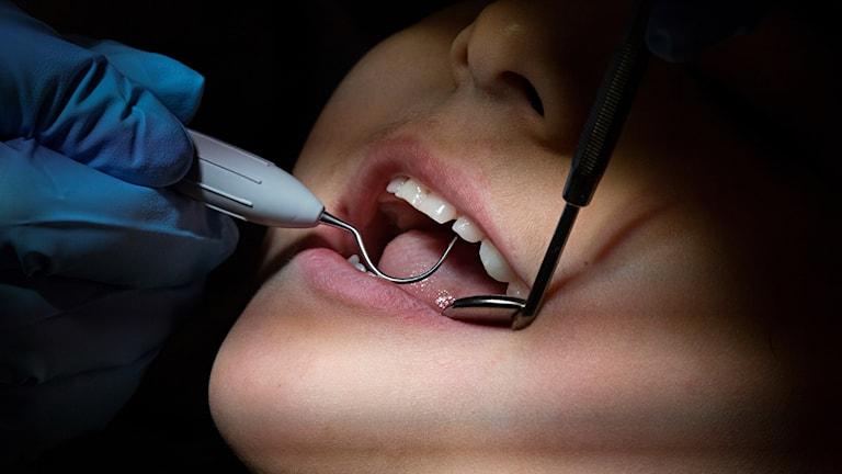 Tandläkare undersöker mun.
