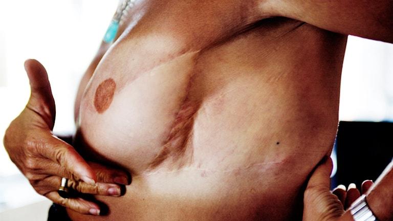 Bröstcancer. Foto: Johanna Forsell/TT.