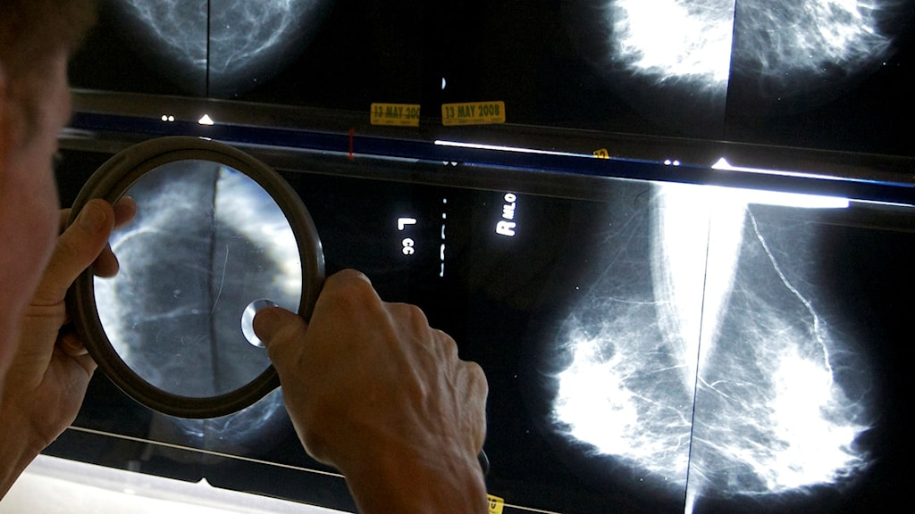 En läkare tolkar mammografibilder på en skärm.