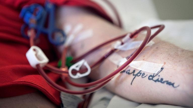 Närbild på en arm och röda slangar.