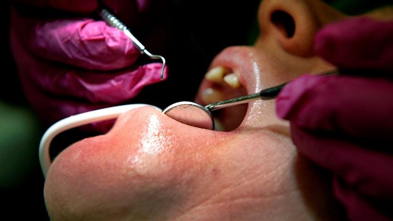 Närbild på en person under ett tandläkarbesök.
