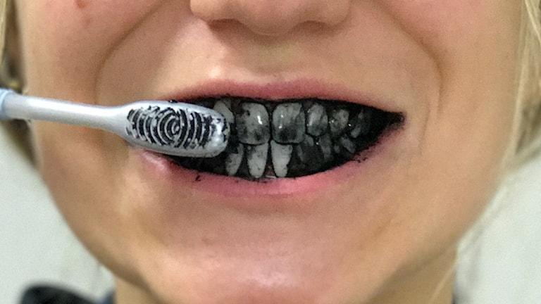 Kolblekning av tänder