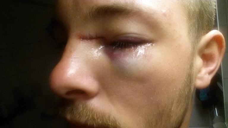 Pontus Rones skadade öga.