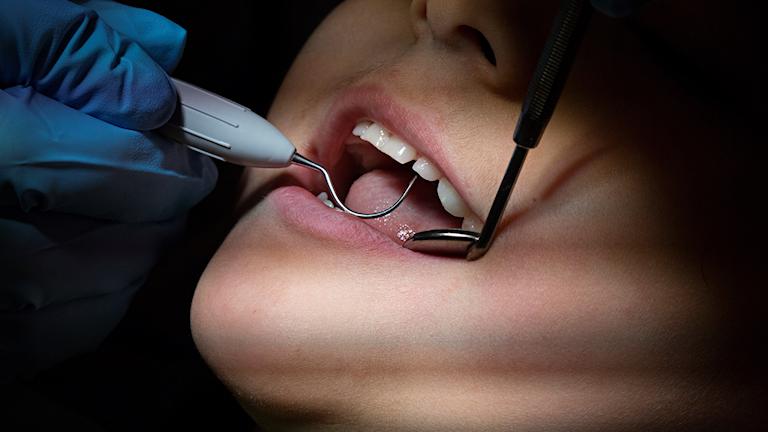 En tandläkare arbetar i en mun. Foto: Martin Holmberg/TT.