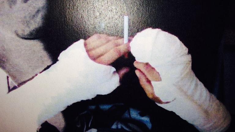 Gipsade armar. Bild ur polisens förundersökningsprotokoll