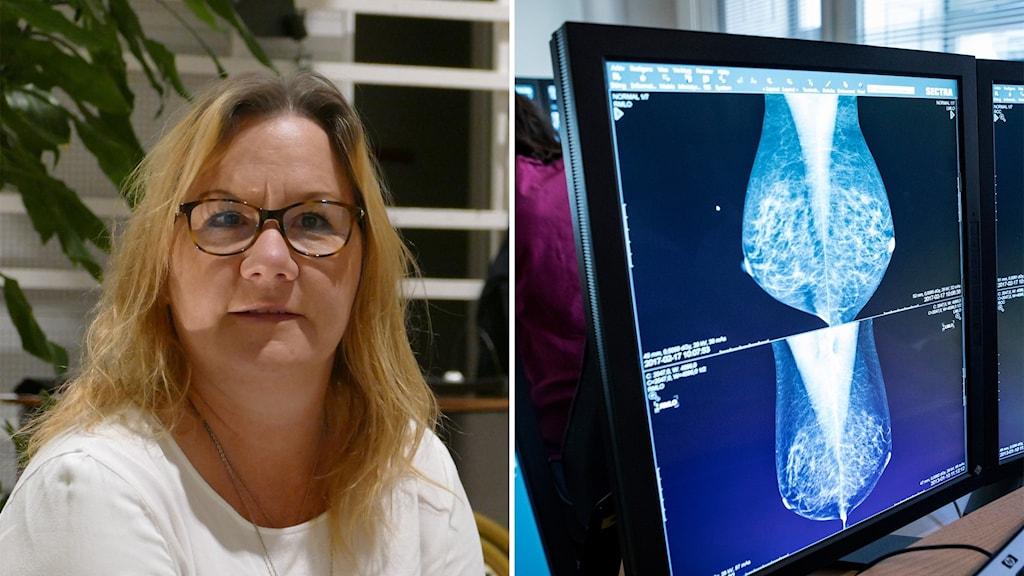 Till vänster: En kvinna med glasögon. Till höger: röntgenbilder på bröst på en datorskärm.