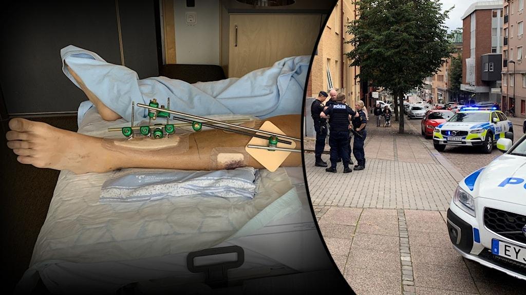 Ben med bandage och skruvar, inklippt med bild på gatan utanför frisörsalongen.