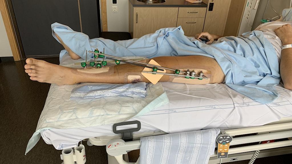 Mannen som blev sköts i benet