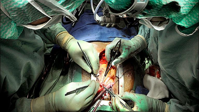 Hjärtoperation Foto: Thomas Oneberg/TT