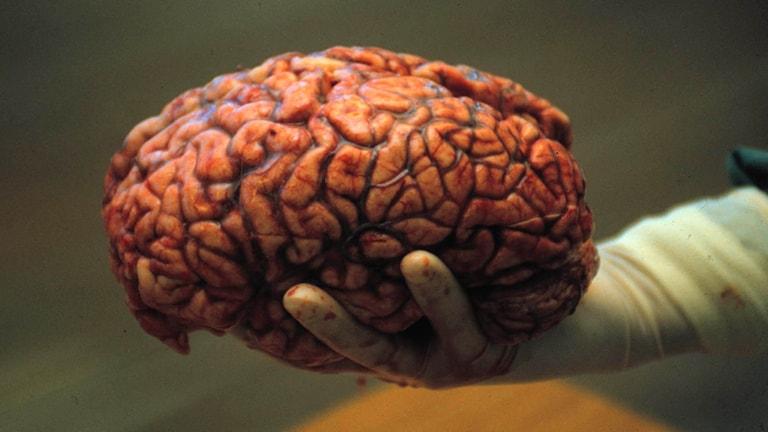 En person håller en hjärna i sin hand. Foto: Rolf Hamilton/TT