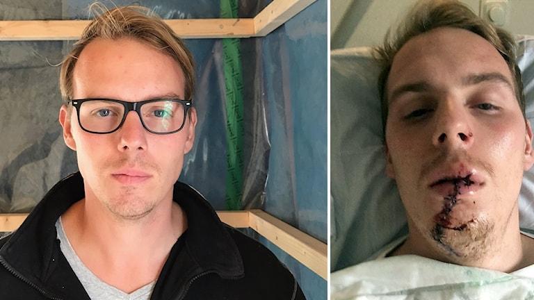 Mardrömmar, operationer och porslinständer är det som är kvar efter Daniel Hallströms arbetsplatsolyckan.