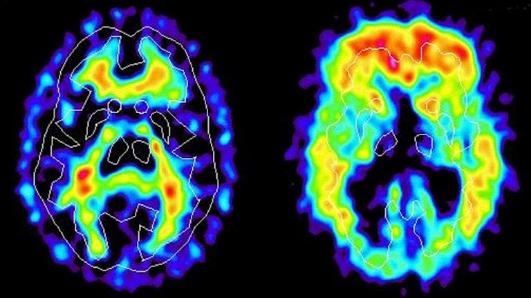 Bild som visar proteinklumpar som bildas i hjärnan vid Alzheimers.