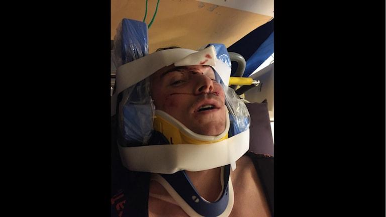 Filip Engqvist på sjukhuset efter skadan. Foto: Privat.