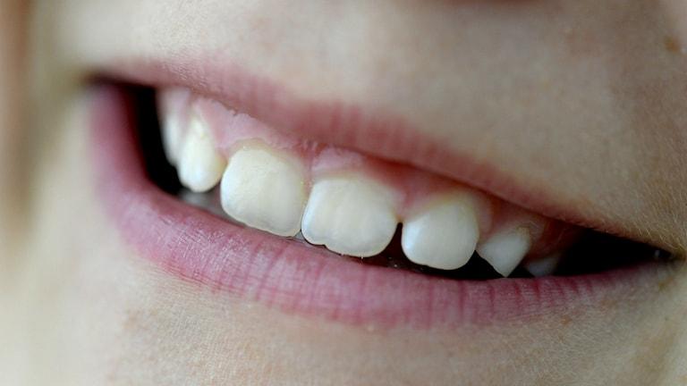 I rika kommuner har de äldre fler tänder. Foto: Janerik Henriksson / TT