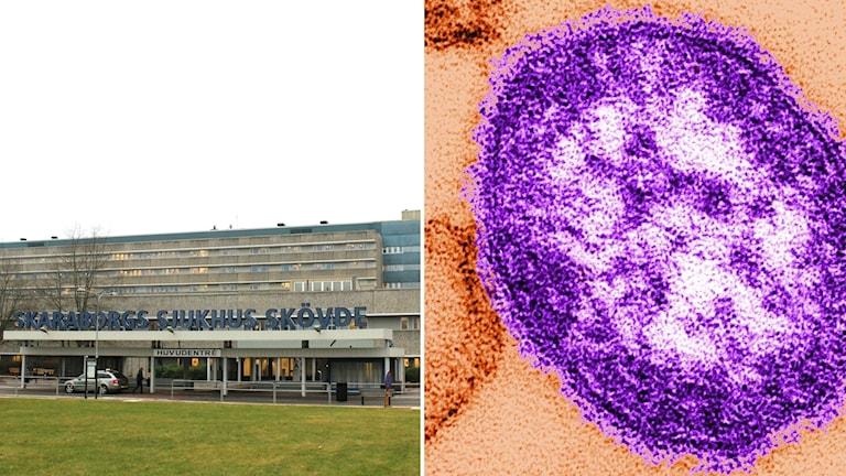 Skaraborgs sjukhus och mässling