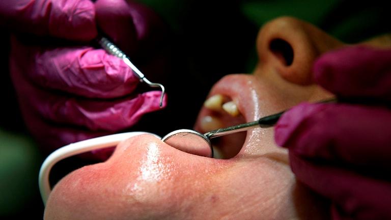 Tandinstrument i munnen på patient.
